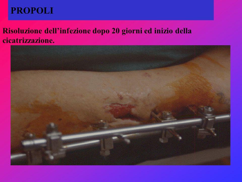PROPOLI Risoluzione dell'infezione dopo 20 giorni ed inizio della cicatrizzazione.