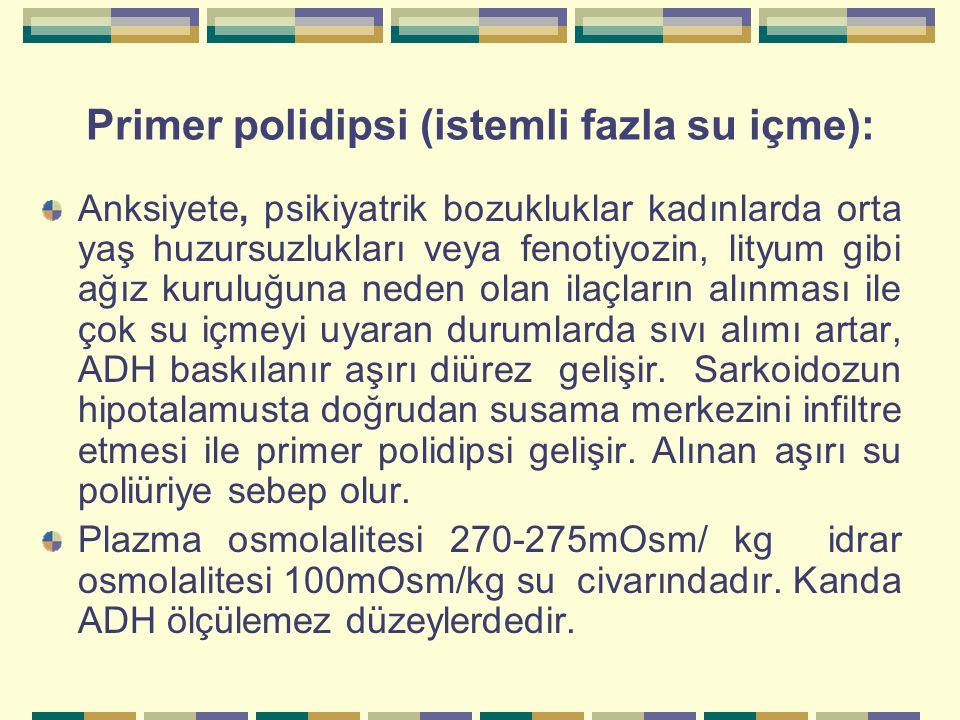 Primer polidipsi (istemli fazla su içme):