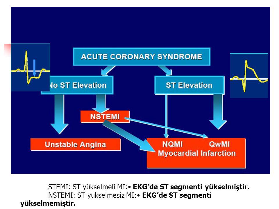 STEMI: ST yükselmeli MI:• EKG'de ST segmenti yükselmiştir.