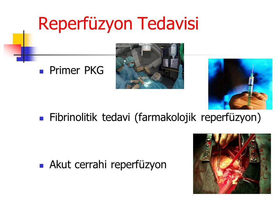 Reperfüzyon Tedavisi Primer PKG