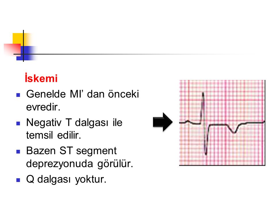 İskemi Genelde MI' dan önceki evredir. Negativ T dalgası ile temsil edilir. Bazen ST segment deprezyonuda görülür.