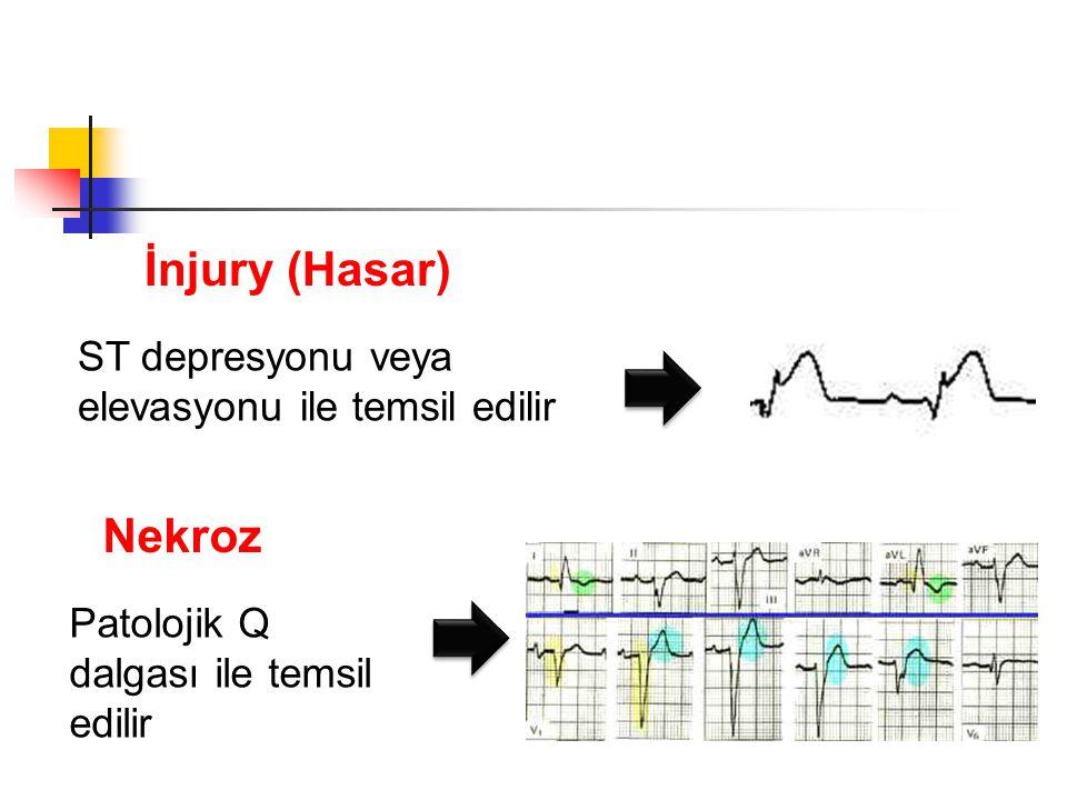 İnjury (Hasar) Nekroz ST depresyonu veya elevasyonu ile temsil edilir
