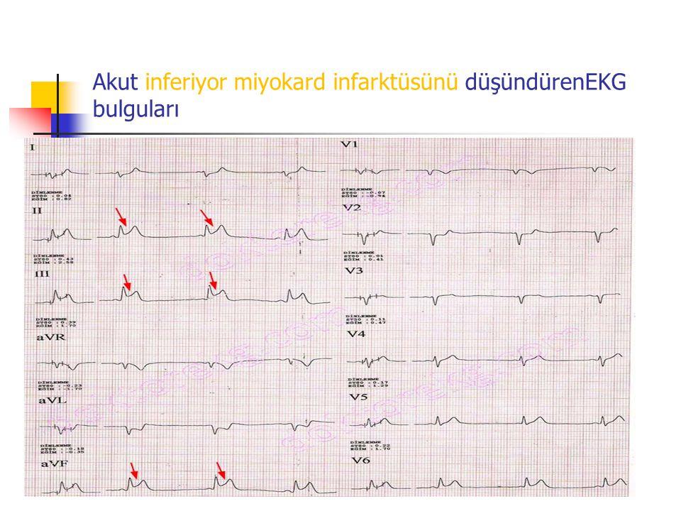 Akut inferiyor miyokard infarktüsünü düşündürenEKG bulguları