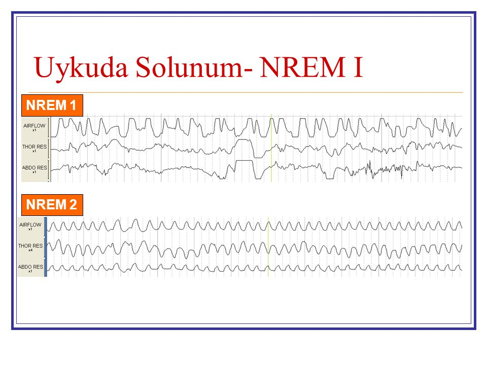 Uykuda Solunum- NREM I NREM 1 NREM 2