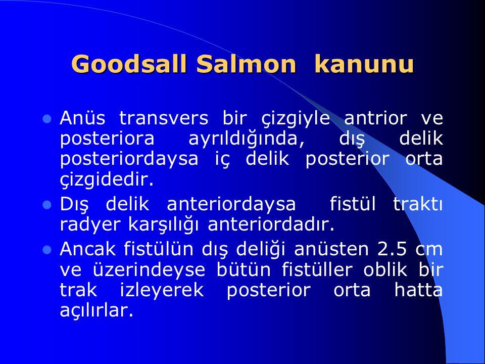 Goodsall Salmon kanunu