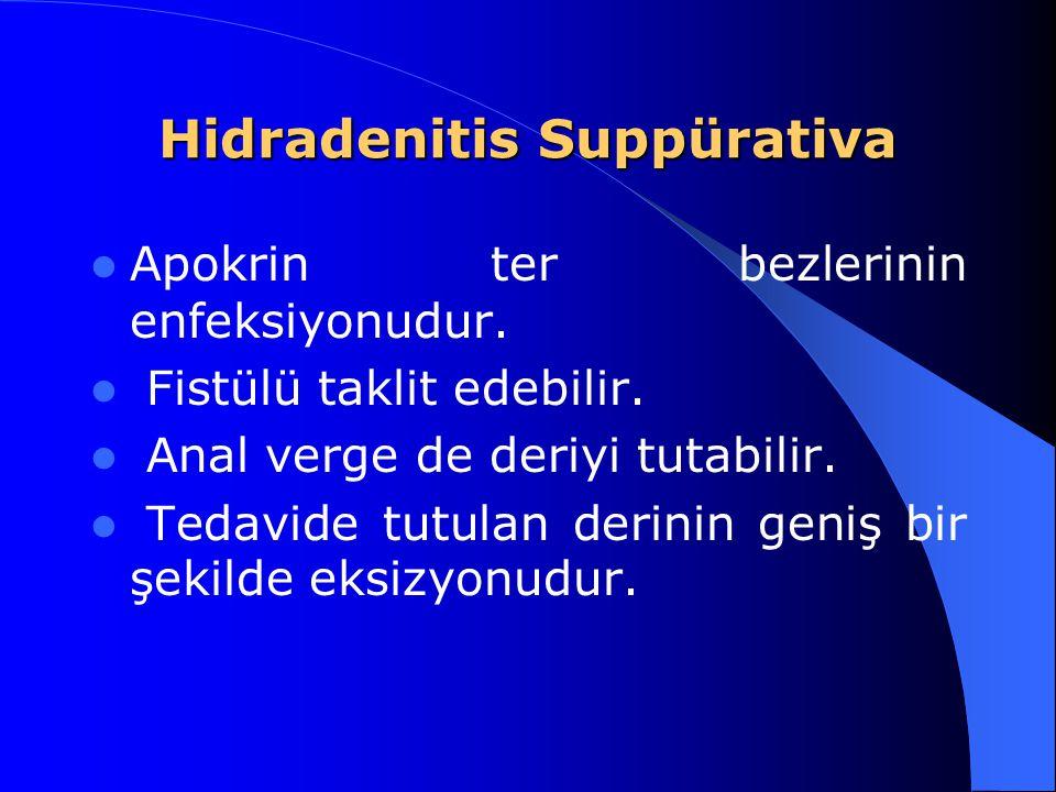 Hidradenitis Suppürativa