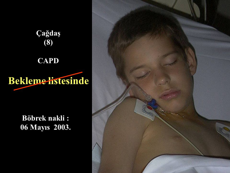Çağdaş (8) CAPD Bekleme listesinde Böbrek nakli : 06 Mayıs 2003.