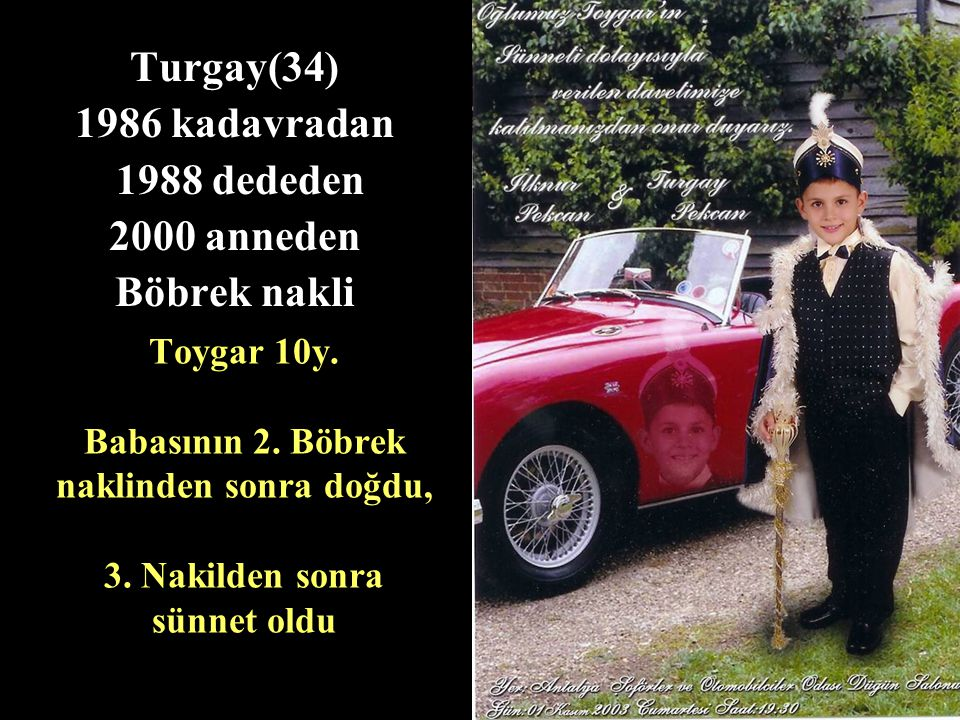 Turgay(34) 1986 kadavradan 1988 dededen 2000 anneden Böbrek nakli