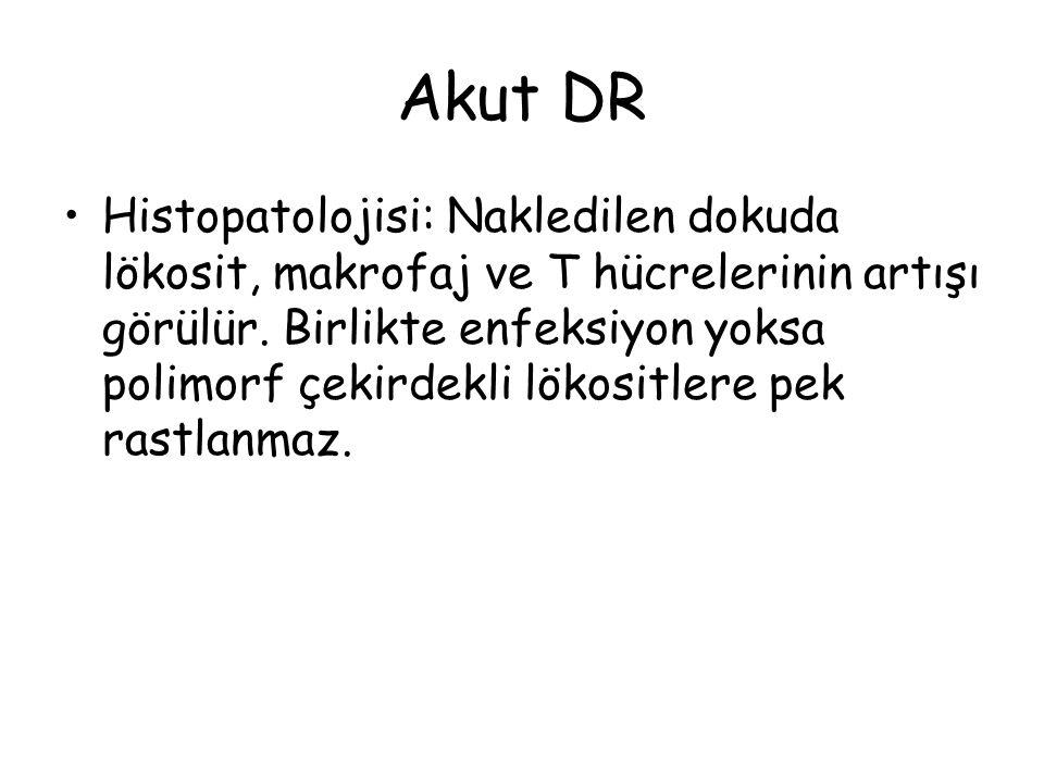 Akut DR