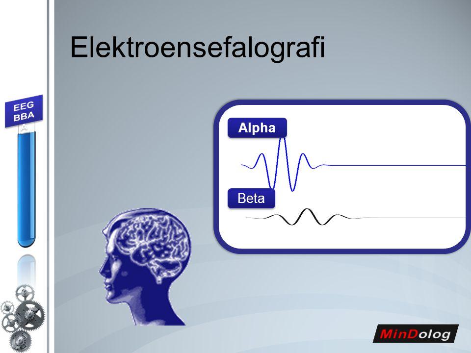 Elektroensefalografi