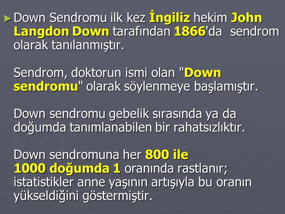 Down Sendromu ilk kez İngiliz hekim John Langdon Down tarafından 1866 da sendrom olarak tanılanmıştır.