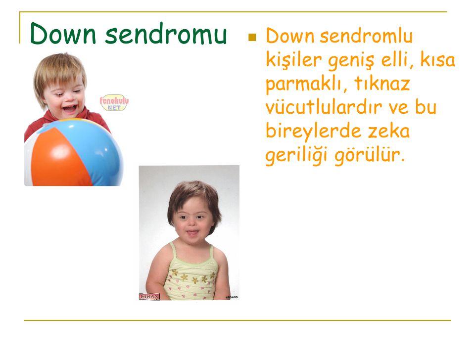 Down sendromu Down sendromlu kişiler geniş elli, kısa parmaklı, tıknaz vücutlulardır ve bu bireylerde zeka geriliği görülür.