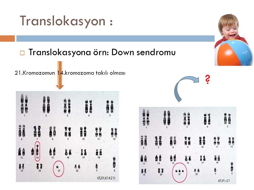 Translokasyon : Translokasyona örn: Down sendromu