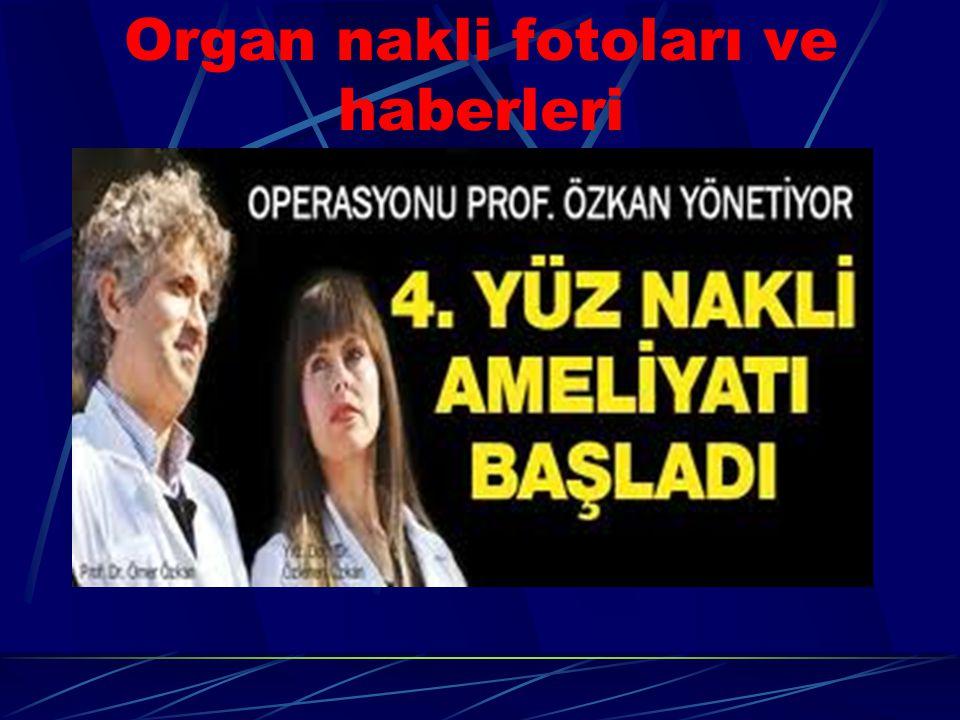 Organ nakli fotoları ve haberleri
