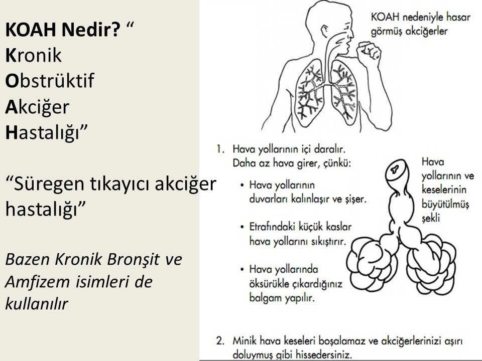 Süregen tıkayıcı akciğer hastalığı