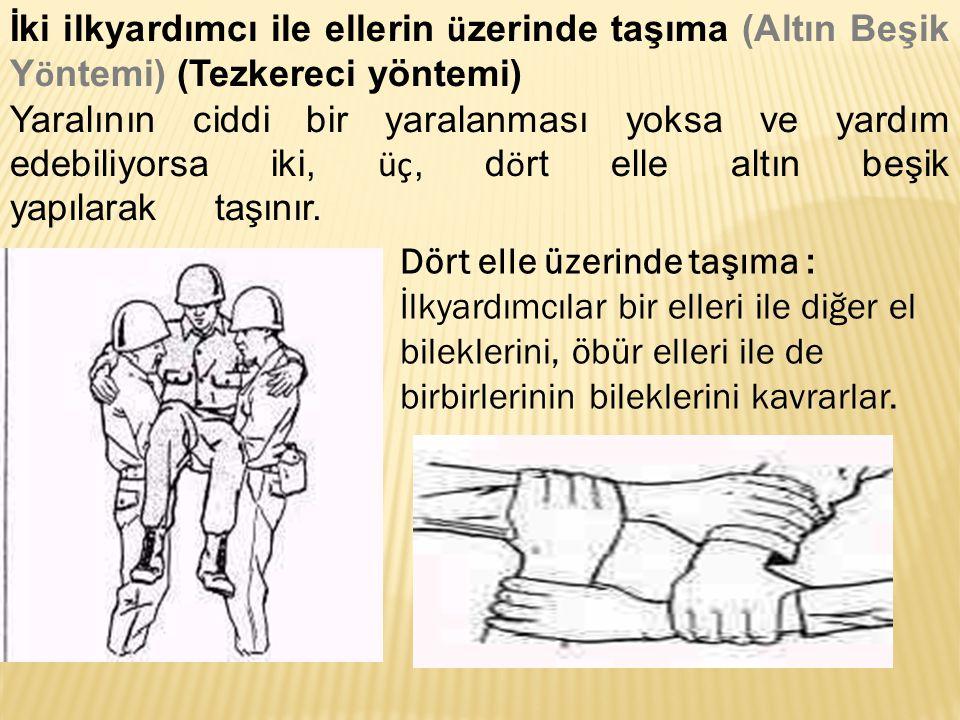 İki ilkyardımcı ile ellerin üzerinde taşıma (Altın Beşik Yöntemi) (Tezkereci yöntemi)