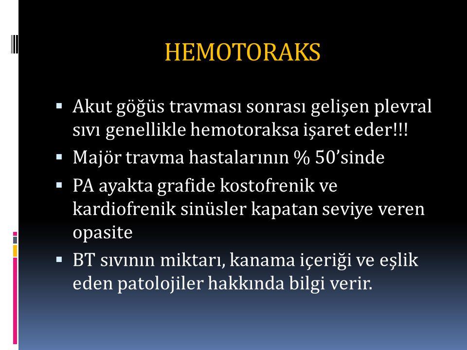 HEMOTORAKS Akut göğüs travması sonrası gelişen plevral sıvı genellikle hemotoraksa işaret eder!!! Majör travma hastalarının % 50'sinde.