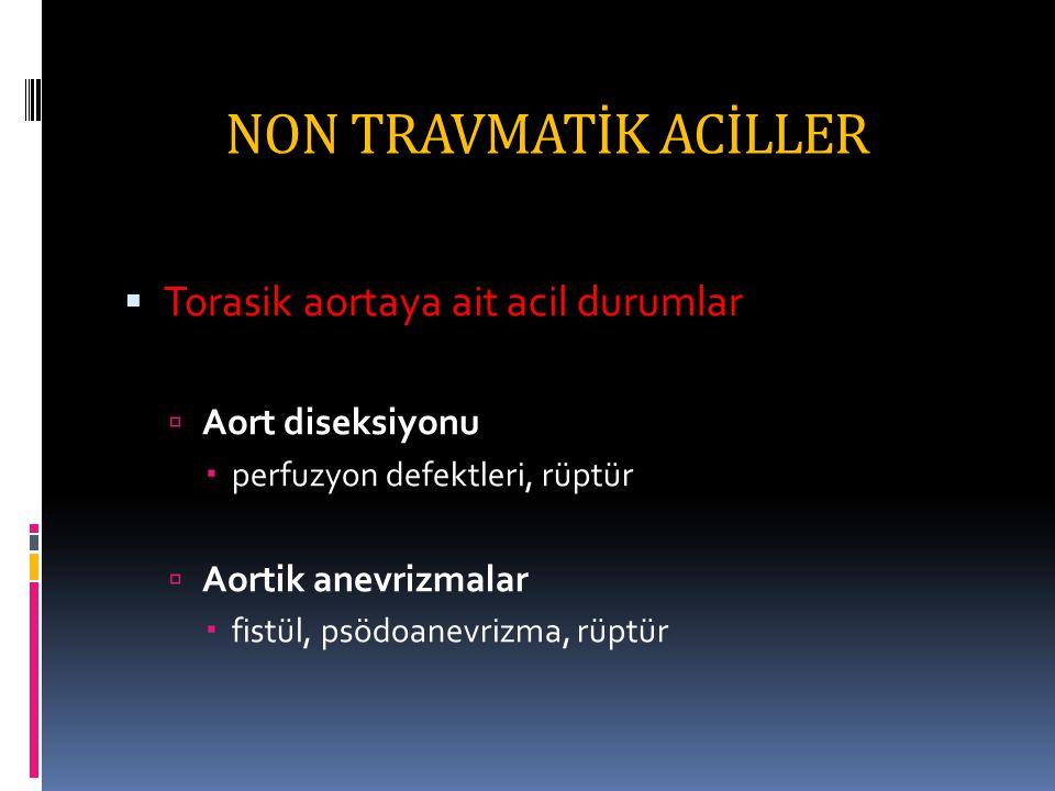 NON TRAVMATİK ACİLLER Torasik aortaya ait acil durumlar