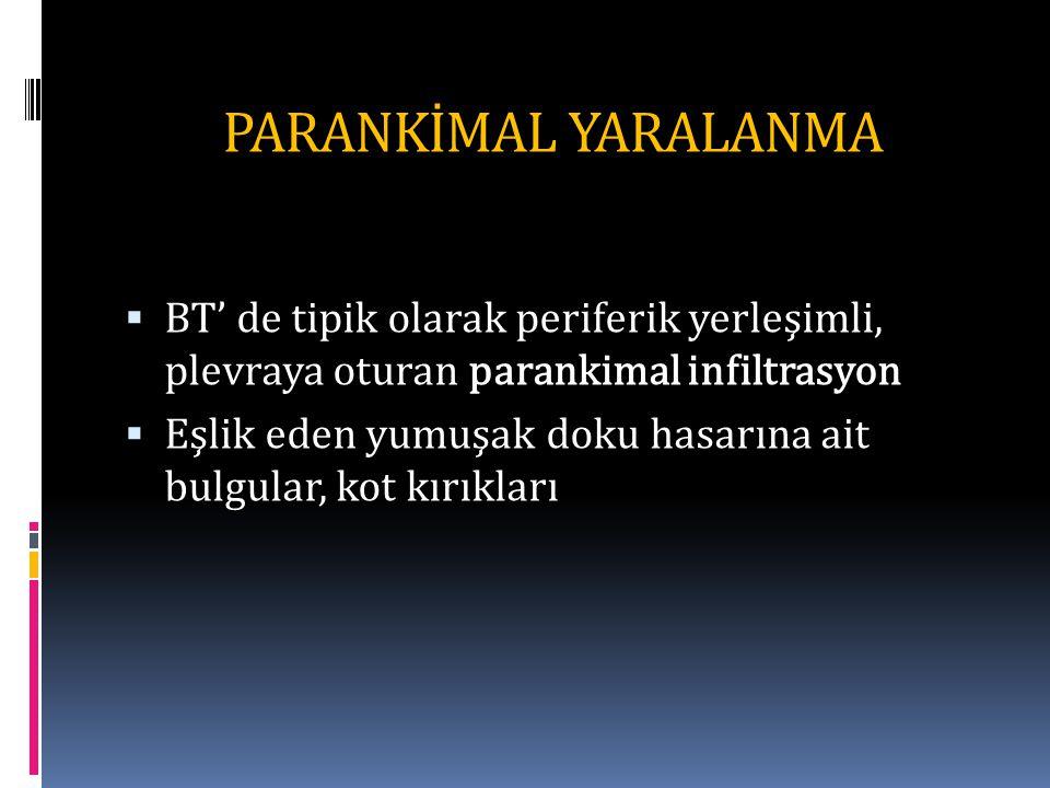 PARANKİMAL YARALANMA BT' de tipik olarak periferik yerleşimli, plevraya oturan parankimal infiltrasyon.