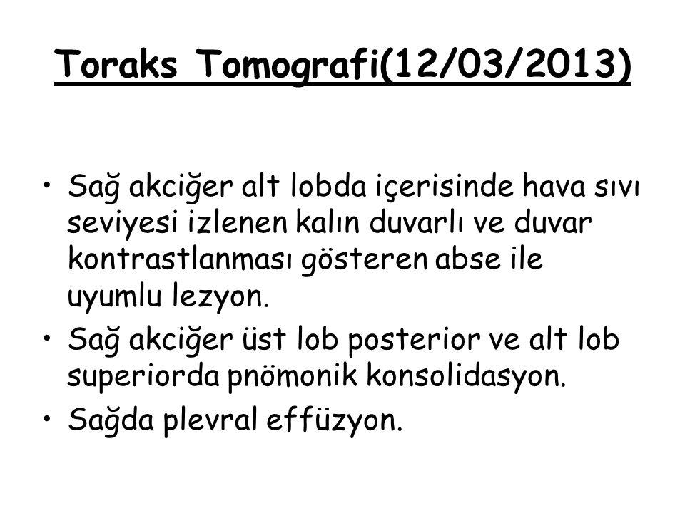 Toraks Tomografi(12/03/2013)