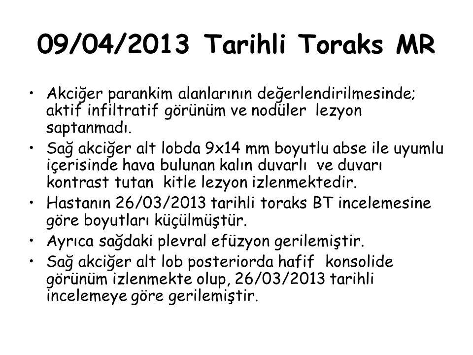 09/04/2013 Tarihli Toraks MR Akciğer parankim alanlarının değerlendirilmesinde; aktif infiltratif görünüm ve nodüler lezyon saptanmadı.