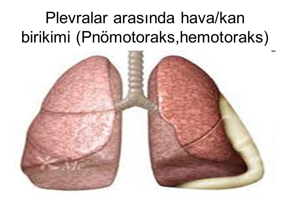 Plevralar arasında hava/kan birikimi (Pnömotoraks,hemotoraks)