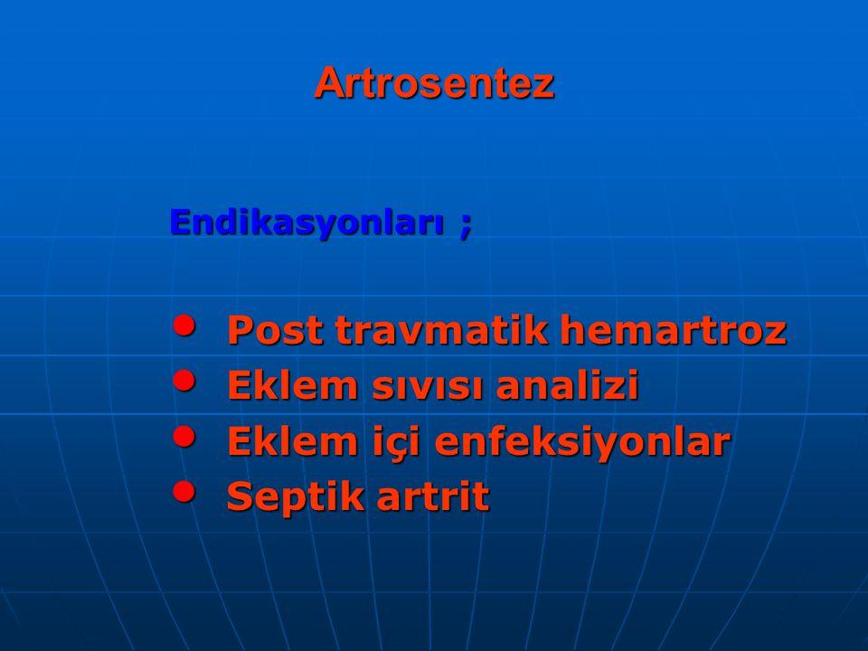 Artrosentez Post travmatik hemartroz Eklem sıvısı analizi