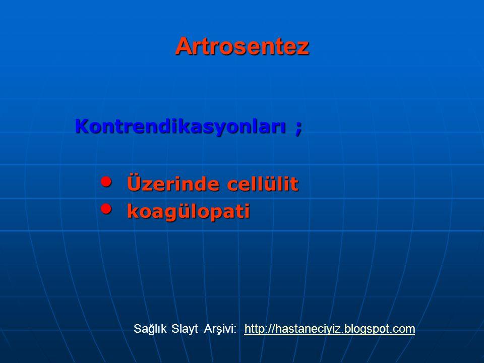 Artrosentez Kontrendikasyonları ; Üzerinde cellülit koagülopati Sağlık