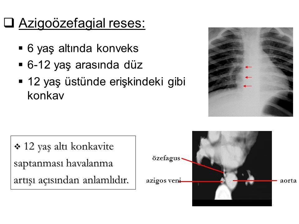 Azigoözefagial reses: