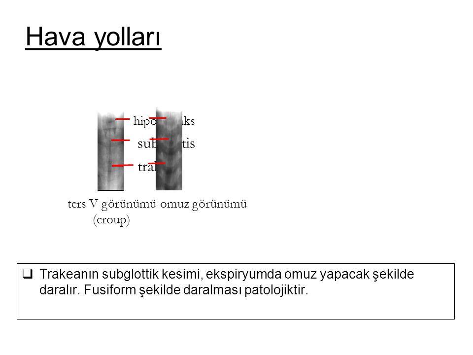 Hava yolları subglottis trakea omuz görünümü hipofarenks