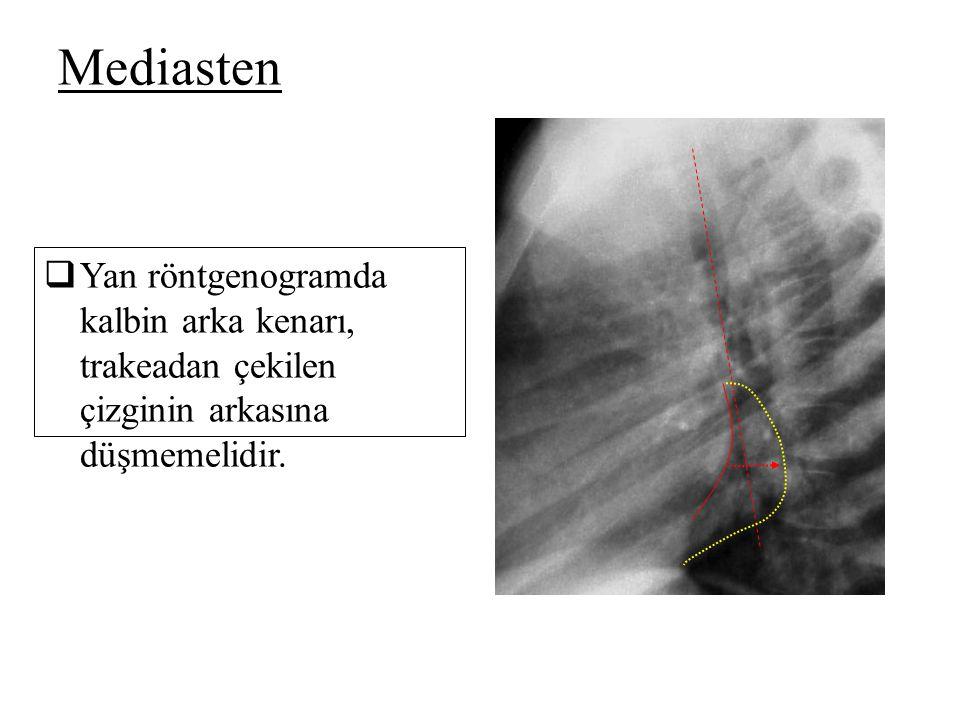 Mediasten Yan röntgenogramda kalbin arka kenarı, trakeadan çekilen çizginin arkasına düşmemelidir.