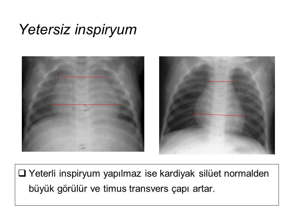 Yetersiz inspiryum Yeterli inspiryum yapılmaz ise kardiyak silüet normalden büyük görülür ve timus transvers çapı artar.