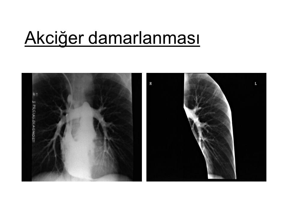 Akciğer damarlanması