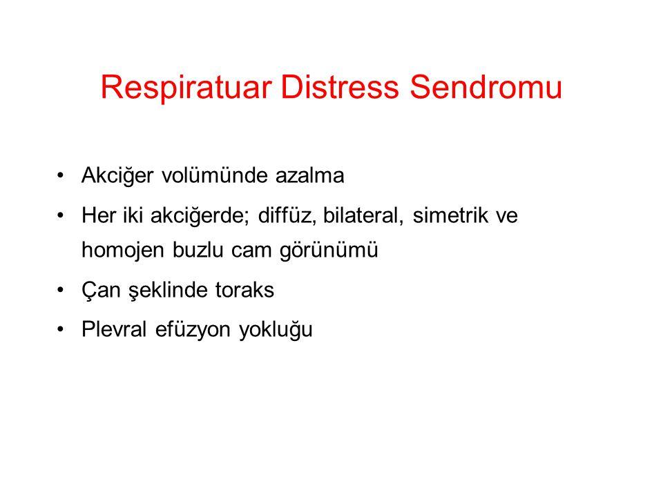 Respiratuar Distress Sendromu