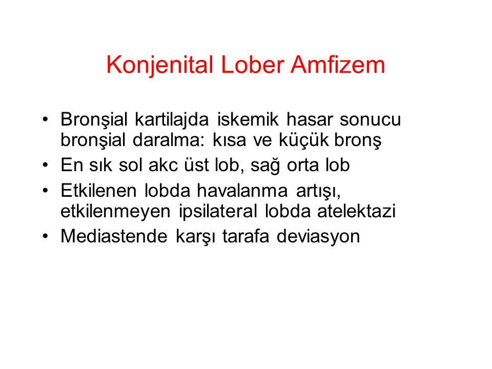 Konjenital Lober Amfizem