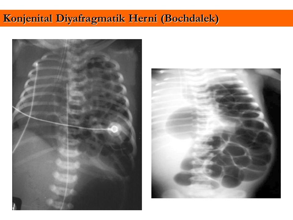 Konjenital Diyafragmatik Herni (Bochdalek)