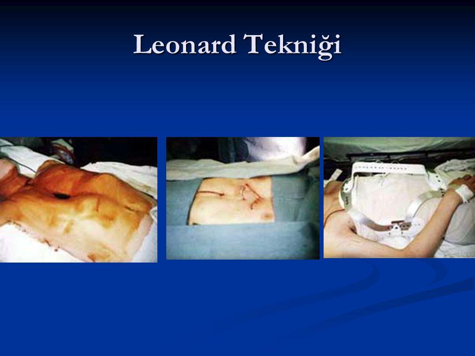 Leonard Tekniği