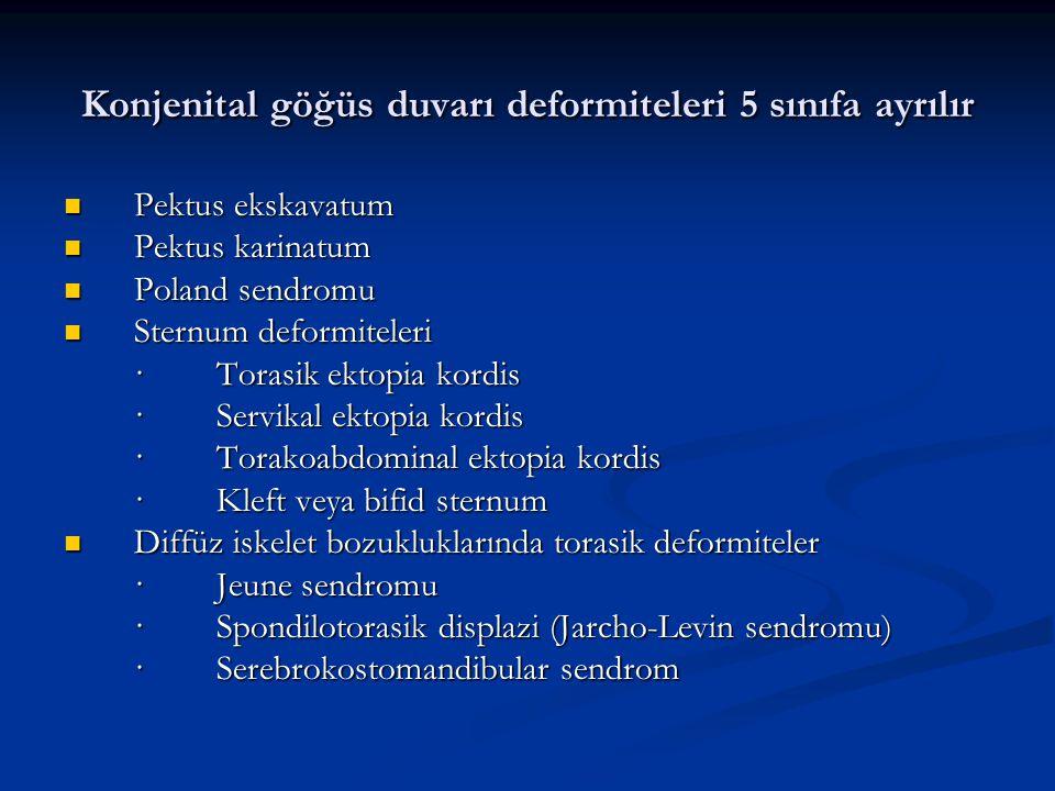 Konjenital göğüs duvarı deformiteleri 5 sınıfa ayrılır