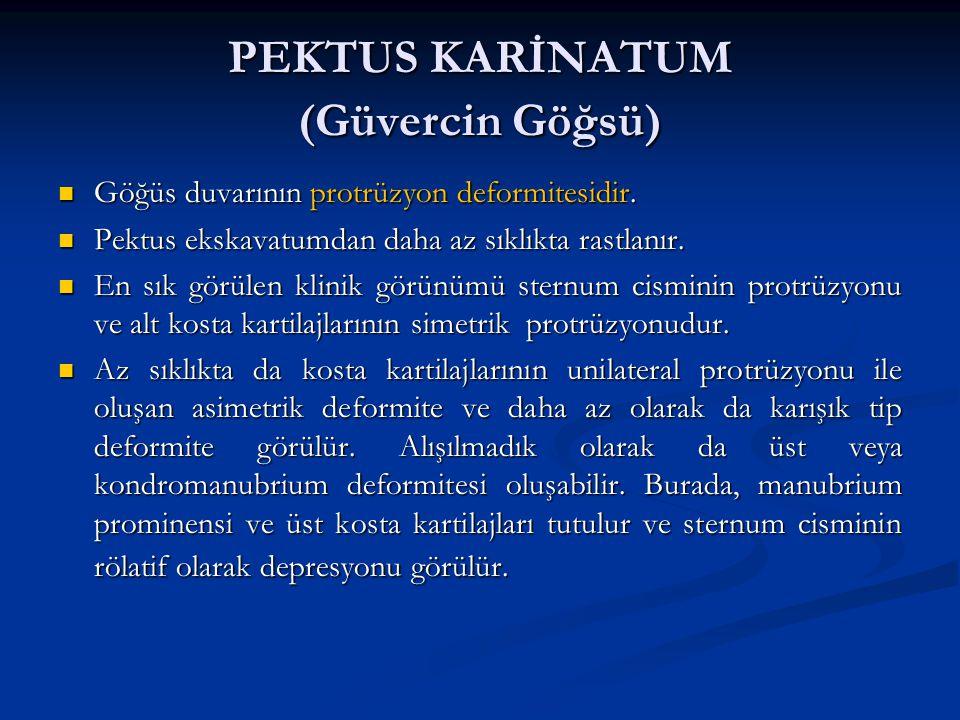 PEKTUS KARİNATUM (Güvercin Göğsü)