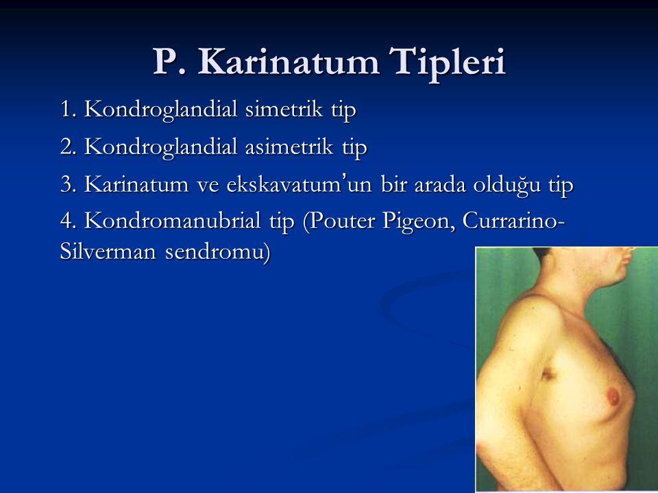 P. Karinatum Tipleri 1. Kondroglandial simetrik tip