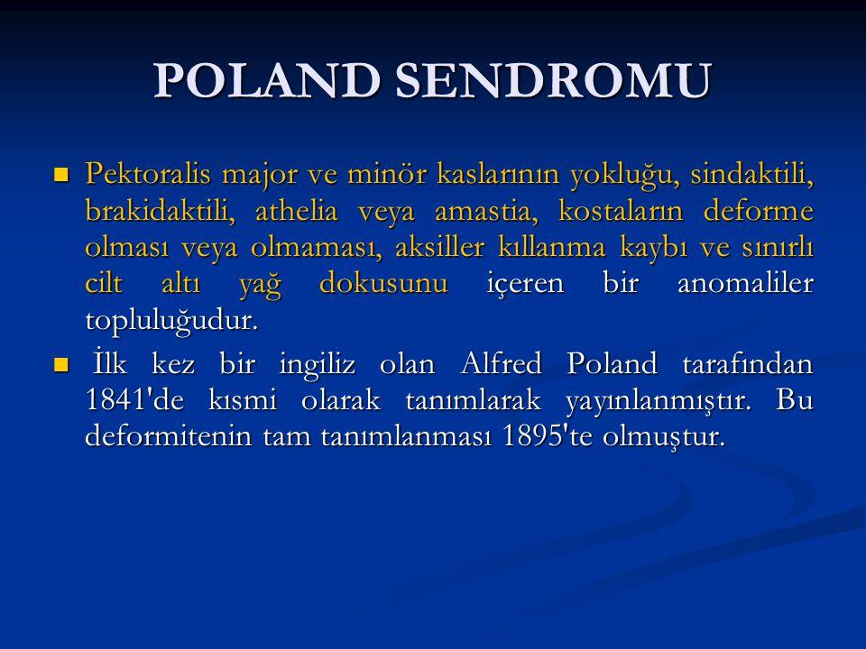 POLAND SENDROMU