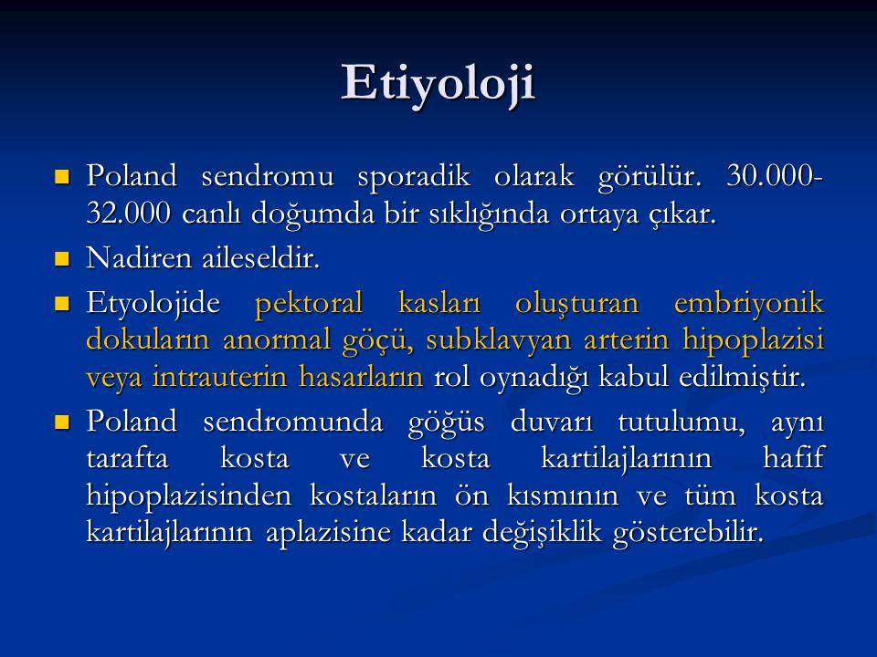 Etiyoloji Poland sendromu sporadik olarak görülür. 30.000-32.000 canlı doğumda bir sıklığında ortaya çıkar.