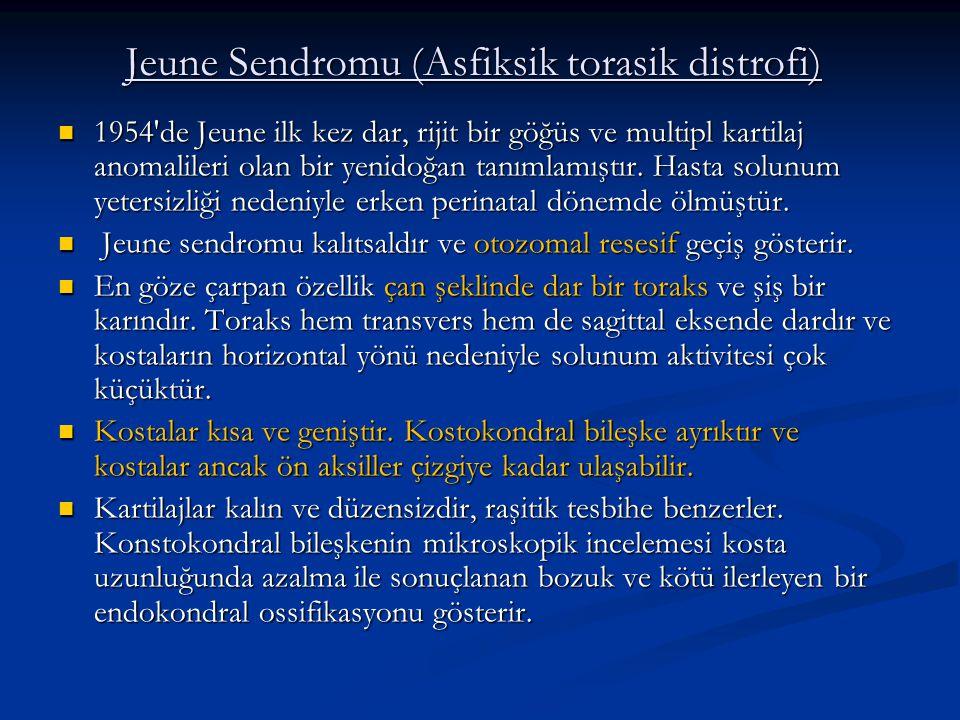 Jeune Sendromu (Asfiksik torasik distrofi)