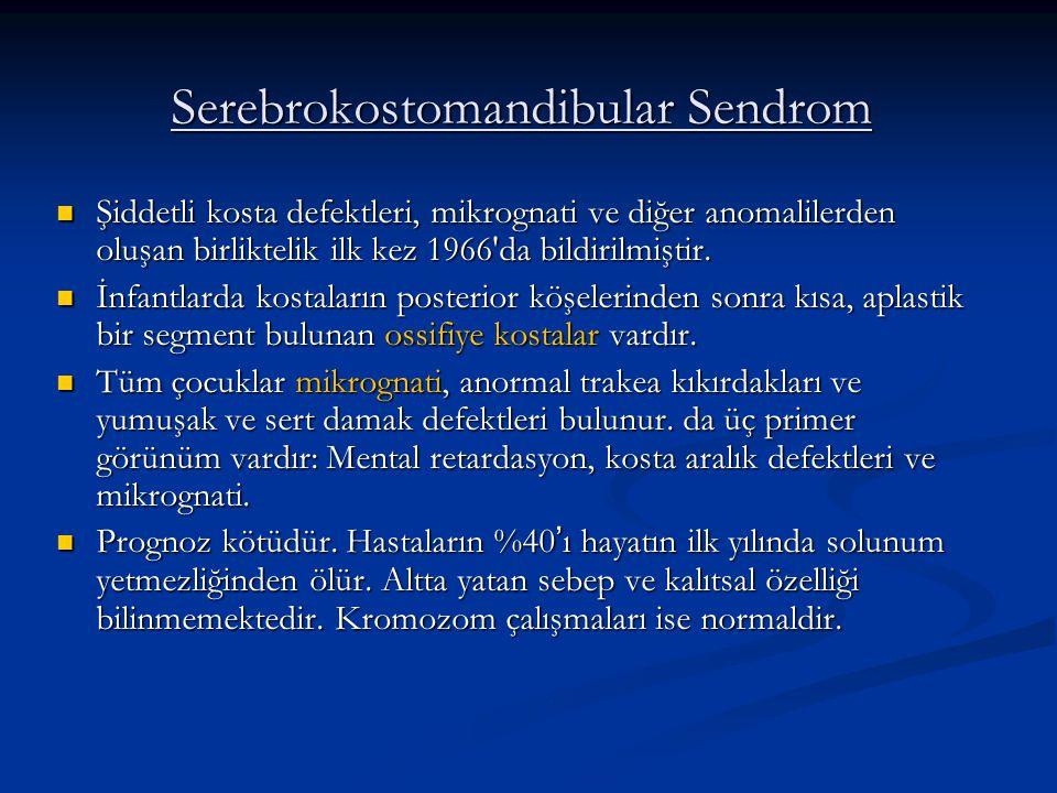 Serebrokostomandibular Sendrom