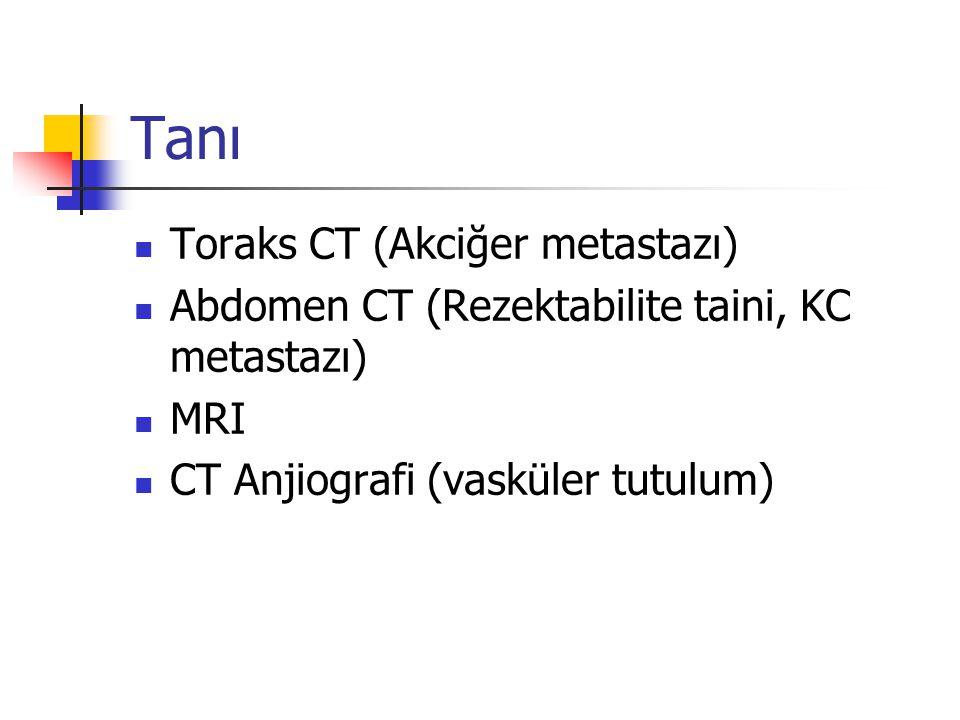 Tanı Toraks CT (Akciğer metastazı)