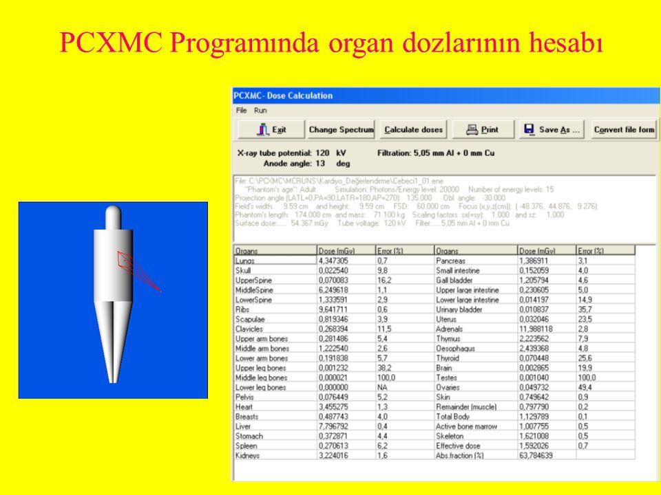 PCXMC Programında organ dozlarının hesabı