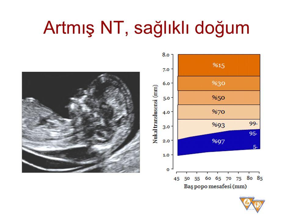 Artmış NT, sağlıklı doğum