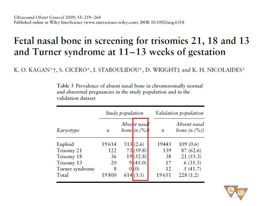 37 Nazal kemik yokluğu riski 23 kat artırıyor ABSTRACT