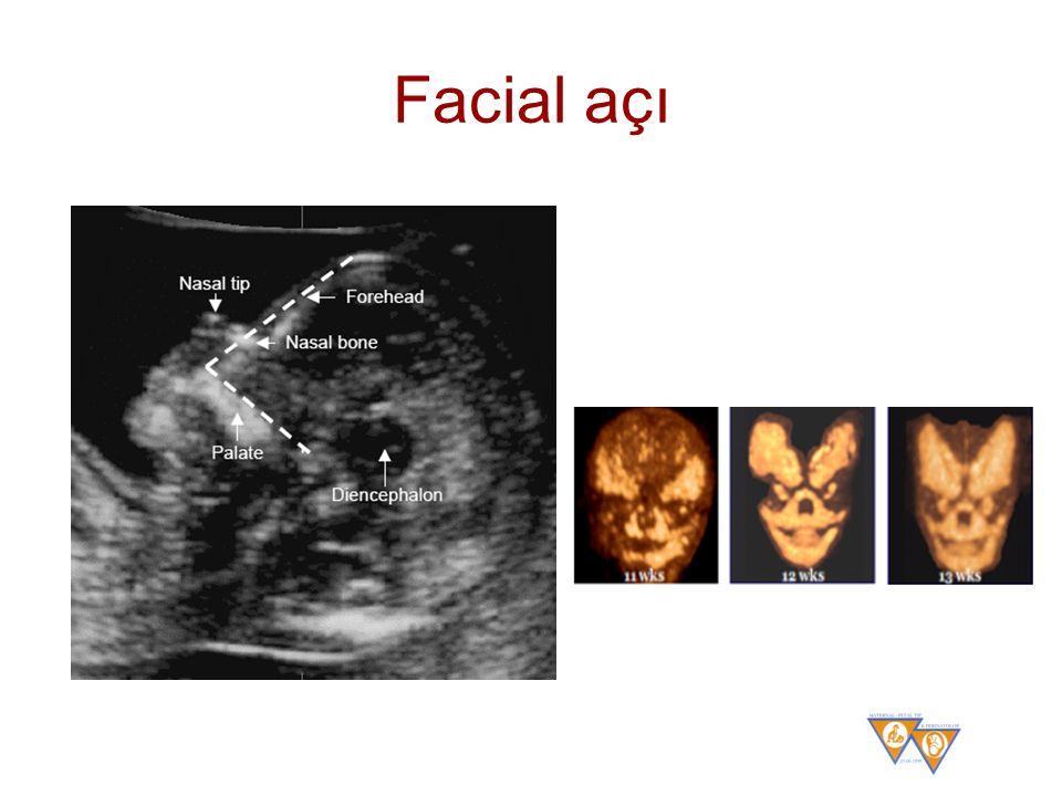 Facial açı Yüz açısı. Fetal yüz açısı ölçümünde gebelik haftası 11+0-13+6 ve BPM'si 45-84 mm arasında olmalıdır.