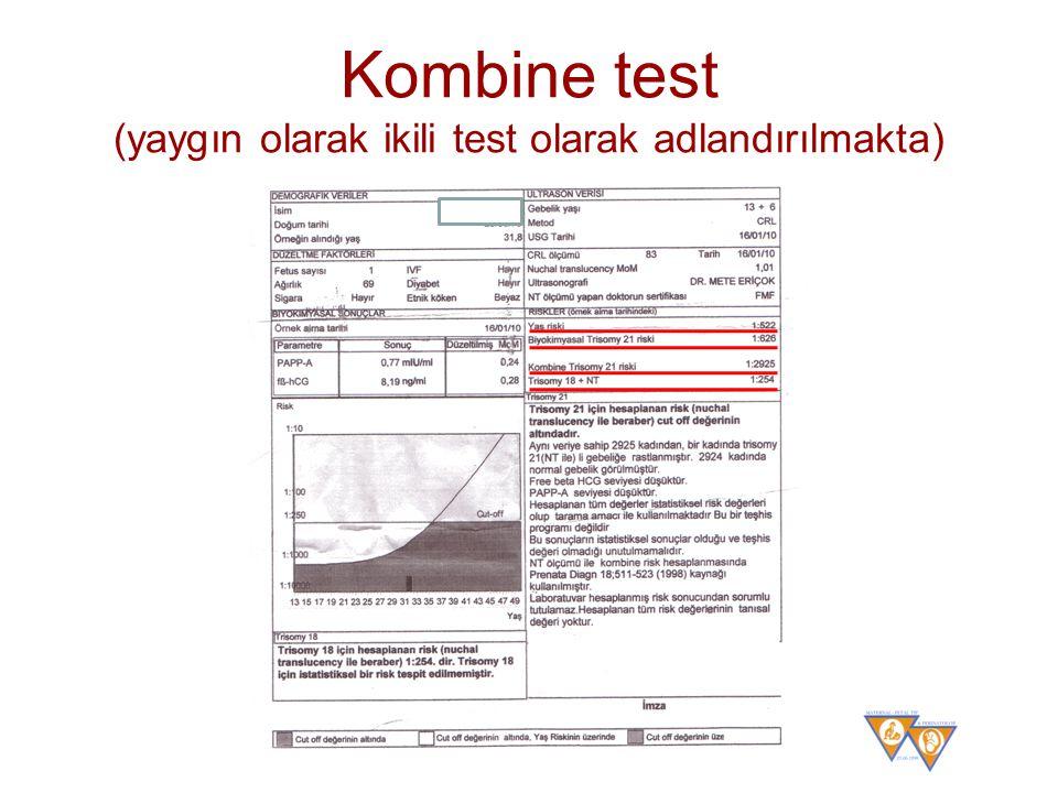 Kombine test (yaygın olarak ikili test olarak adlandırılmakta)